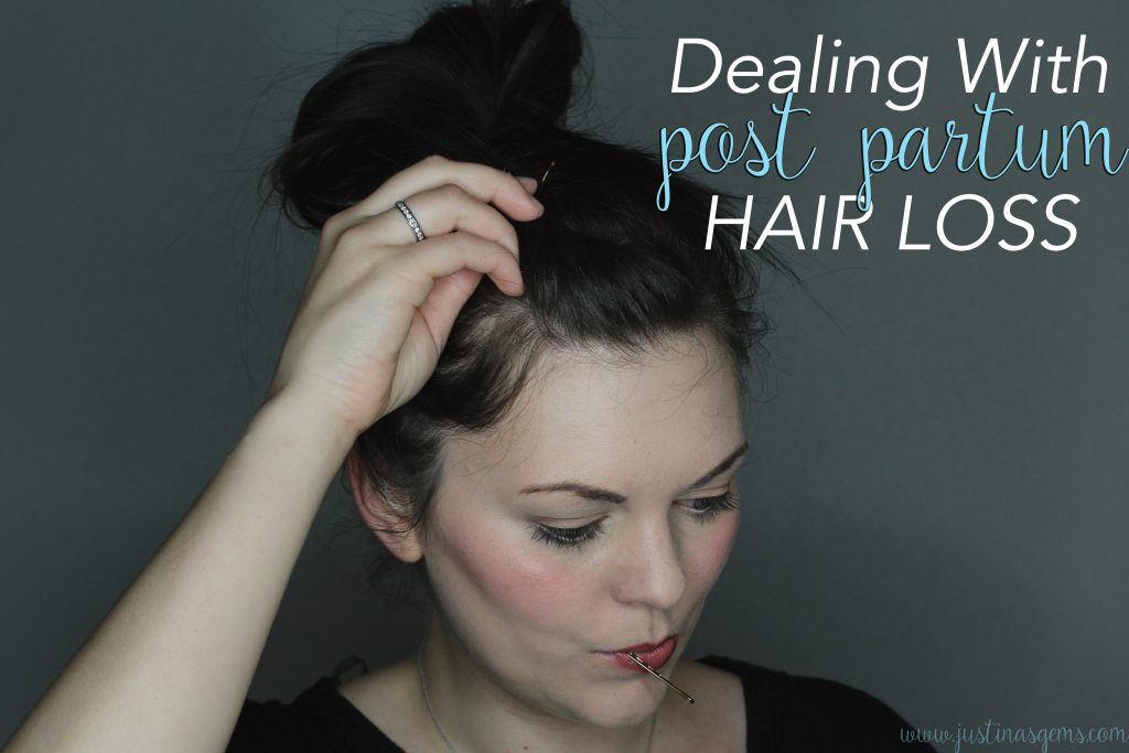 Post Partum Hair Loss | Hair loss after pregnancy | Post Baby Hair Loss | Inexpensive Ways to Combat Post Partum Hair Loss | Essential Oils for Post Partum Hair Loss | How to Stop Post Partum Hair Loss