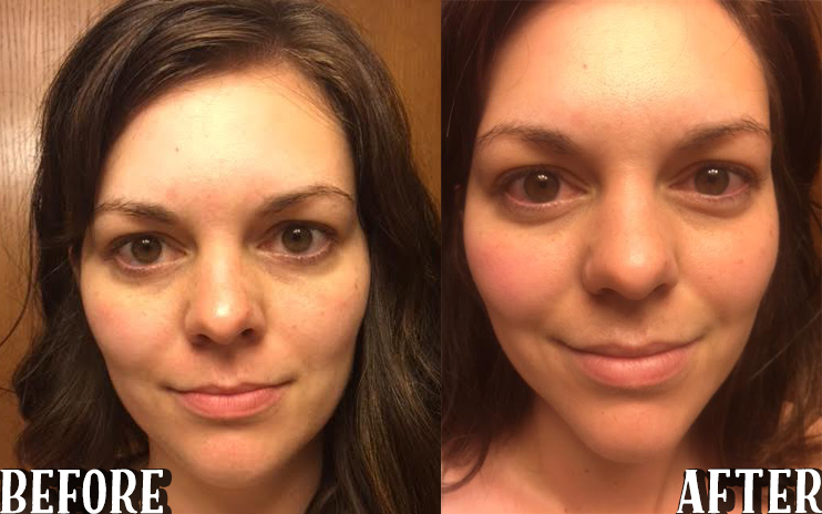 before and after loreal revitalift
