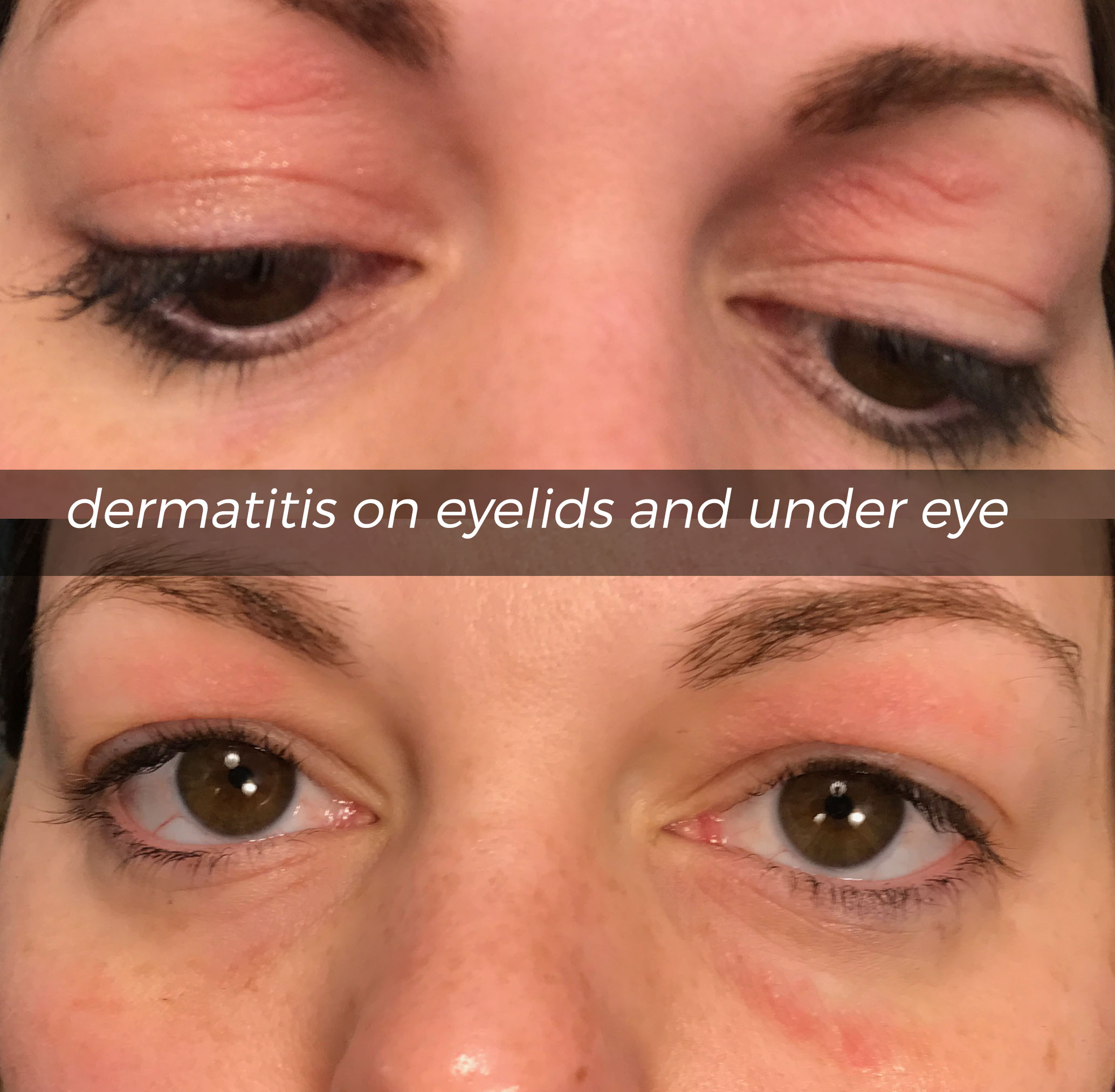 dermatitis on eyelids and under eye